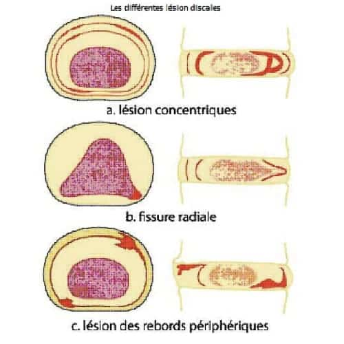 lesions discales decompression neuro vertebrale decompression vertebrale cabinet osteopathie florent schoofs osteopathe paris 7 osteopathie 75007