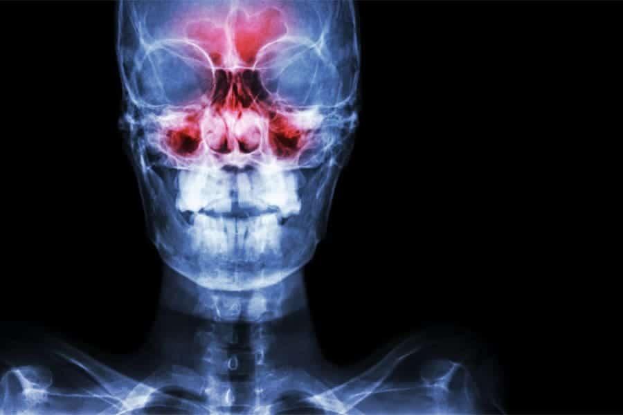 osteopathie cranienne osteopathie migraine osteopathie machoire cabinet osteopathie florent schoofs osteo paris 7 osteopathie 75007