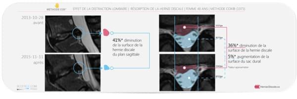 table flexion distraction manipulation cas 1 florent schoofs ostepathe paris 7 decompression neurovertebrale