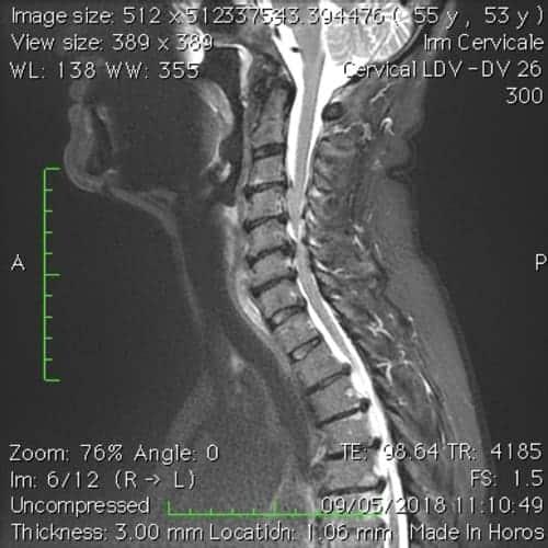 cas patients 11 florent schoofs osteopathe paris 7 decompression neurovertebrale paris 7 1