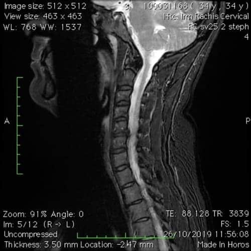 cas patients florent schoofs osteopathe paris 7 decompression neurovertebrale paris 7 2