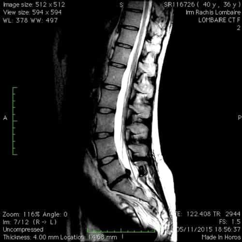hernie discale l5s1 sciatique paralysante laminectomie partielle florent schoofs osteopathe paris 7 decompression neurovertebrale paris 7 1